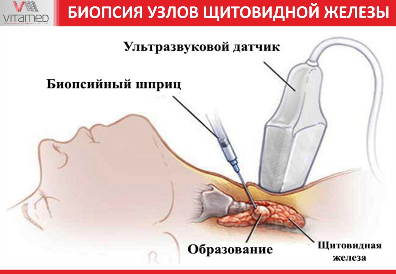 Какие бывают узлы щитовидной железы